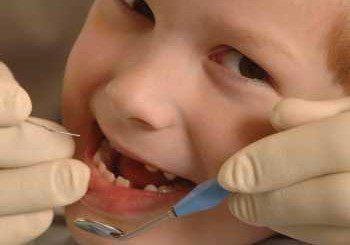Запечатаха без пари зъбите на 17 000 деца, догодина пак