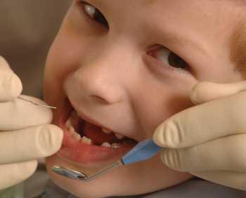 кариес при децата млечни зъби