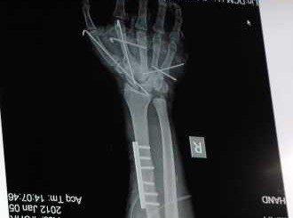 Безплатни прегледи при ортопед