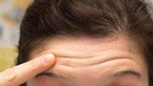 бръчки на челото