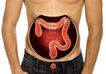 Махат дебелото черво на 20-годишен заради риск от рак