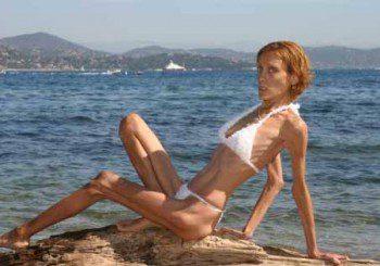 Хранителните разстройства са водеща причина за смърт при жени  до 30 г.