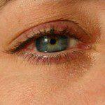око болка в очите подути клепачи
