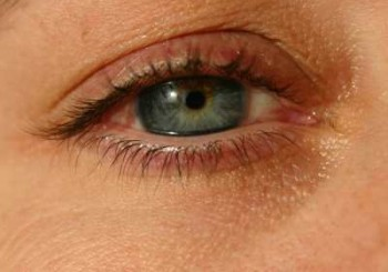 Меланом може да се развие и в очите