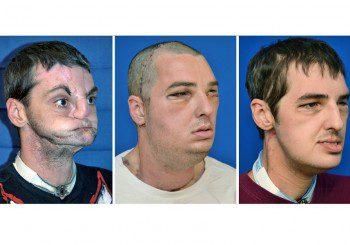 Трансплантираха цяло лице успешно на мъж в САЩ