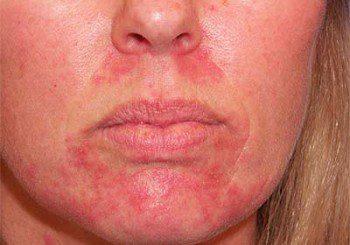 При атопичен дерматит често липсват калий и натрий