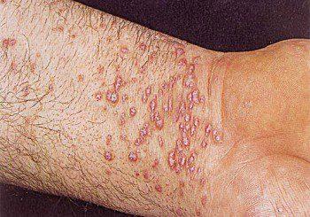 Видове екземи по ръцете и лечението им