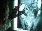 Ултрамодерен рентген в урологията тръгва в Пирогов
