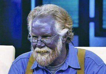 Американец се оказа с виолетов тен след самолечение