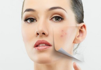 Обривът по лицето може да е от лака за нокти!
