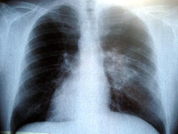 пневмония ХОББ