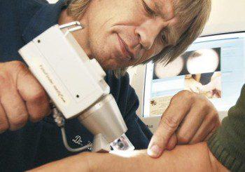 Дерматоскопията открива меланома дори когато той още е невидим