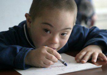 Пробив: Учени успяха да изключат хромозома, виновна за синдрома на Даун