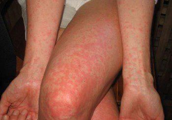 Момче с тежка алергия след кръвопреливане