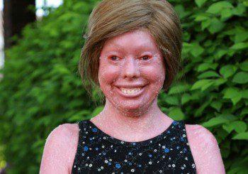 Кожата на момиче е като изгоряла заради рядка болест - ихтиоза на Арлекин