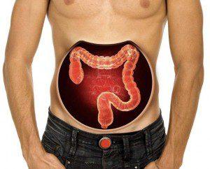 рак на дебело черво