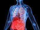 Улцерозен колит – симптоми, диагноза и лечение