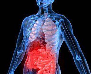 Улцерозен колит - симптоми, диагноза и лечение