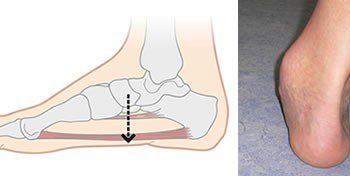 Болка в предната част на ходилото е знак за плоскостъпие