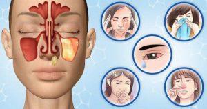 синузит болка под очите
