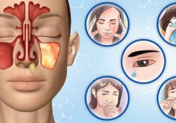 Не духайте силно носа при хрема! Може да се получи синузит