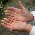 Синдром на Рейно засяга ръцете и пръстите