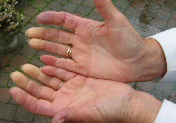 При синдрома на Рейно пръстите побеляват, а после посиняват