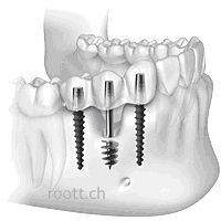зъбен имплант