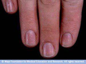набраздени нокти