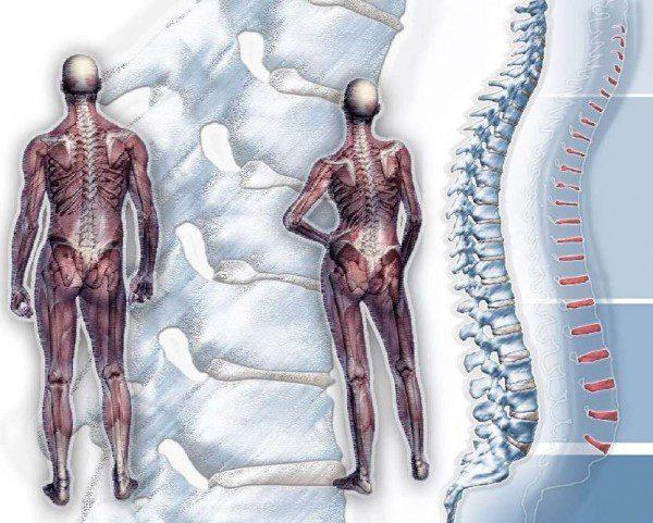 гръбначно изкривяване сколиоза