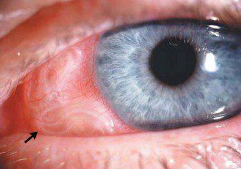 Извадиха от окото на жена 10-сантиметров червей
