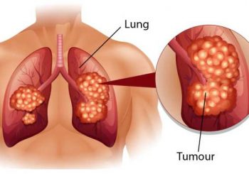 Рак на белия дроб - кои са новостите в лечението
