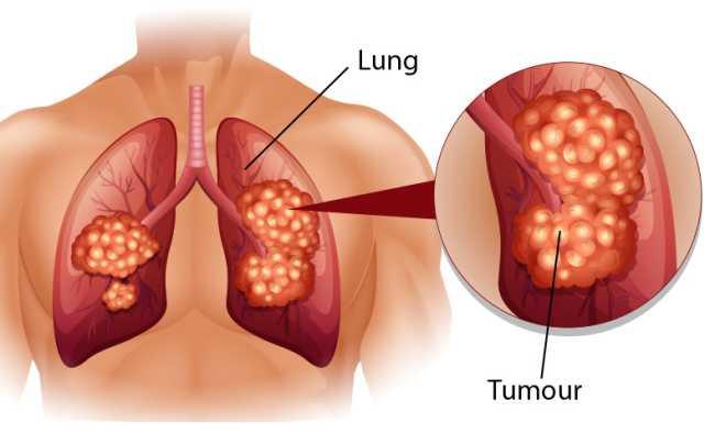 лечението на рака на белия дроб е трудно.