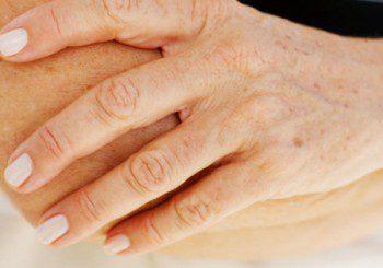 От какво са петната по ръцете?