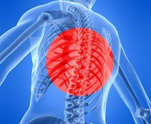 Дископатията поваля хора със слаби мускули