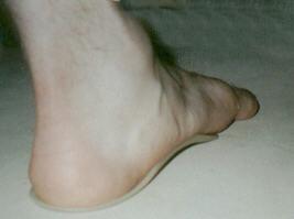 Защо болят стъпалата?