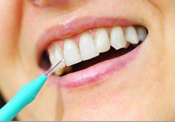 Пиърсингът и оралният секс развалят зъбите
