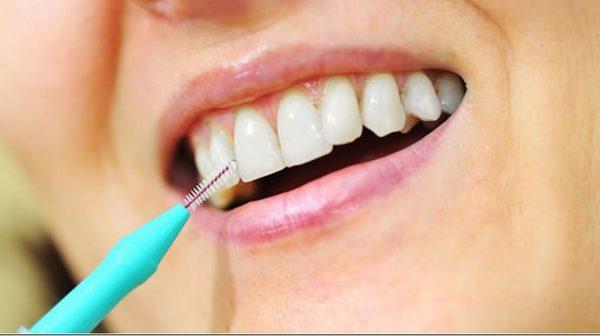 четчица за зъби