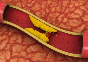 Защо холестеролът е вреден за съдовете?