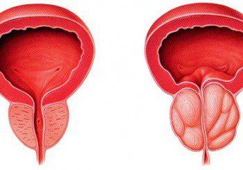Лекарства спират доброкачественото уголемяване на простатата