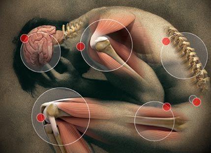Каква е разликата между артрит и ревматизъм