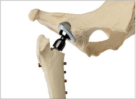 протеза тазобедрена става артроза