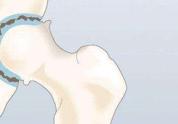 Артроза и коксартроза - симптоми и лечение
