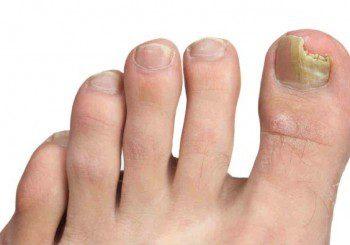 Лечението на гъбичките по ноктите е според вида им