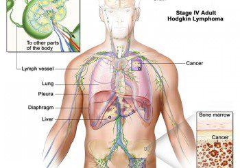 Увеличени и твърди лимфни възли може да са лимфом