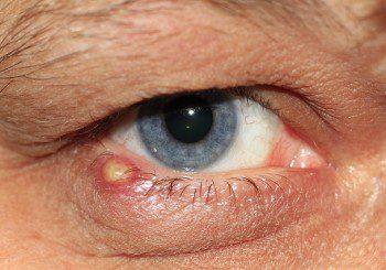 Заразен ли е ечемикът на окото