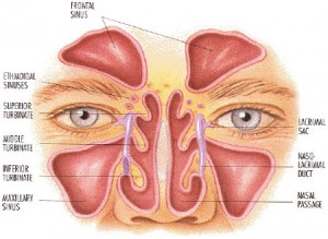 синузит възпаление на синуси