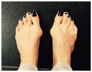 кокалчета на крака