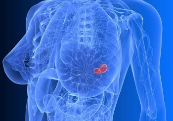 Антихормонална терапия при рак на гърдата