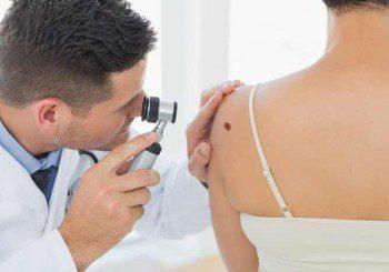 Безплатни профилактични прегледи за рак на кожата в цялата страна